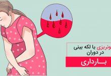 خونریزی شدید در دوران بارداری