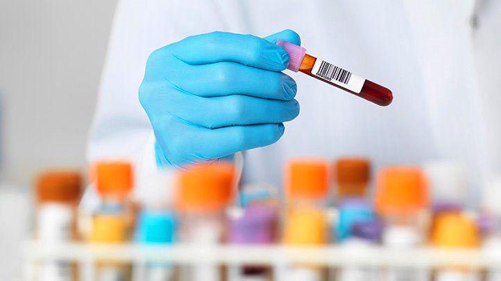 آزمایش های پیش از بارداری