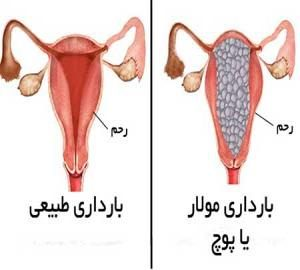 بیماری مول یا بچه خوره