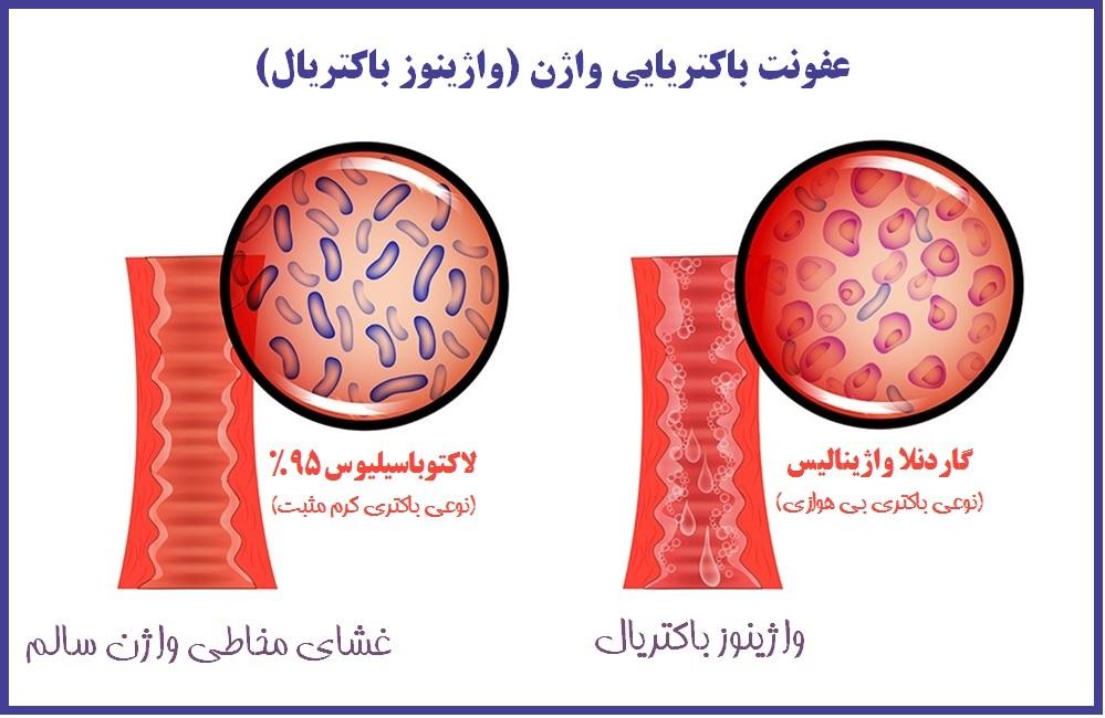 واژینوز باکتریال