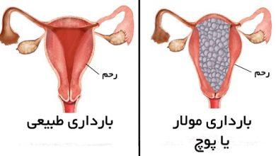 بارداری مولار