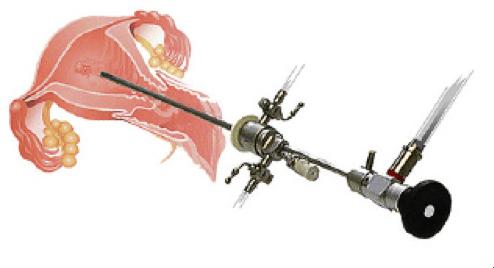 ابزار مورداستفاده در هیستروسکوپی