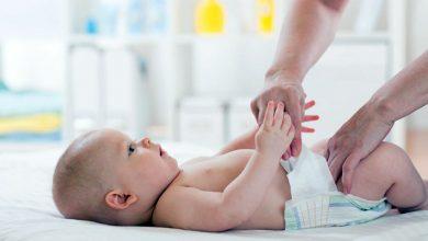 تغییر رنگ مدفوع نوزاد